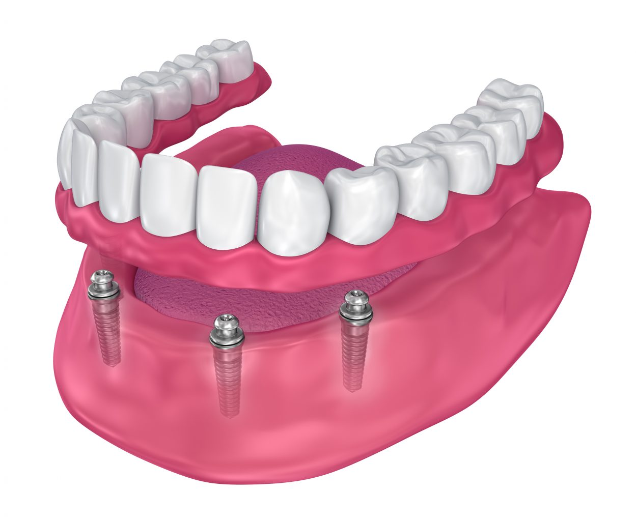 overdenture to be seated on implants ball attachments. 3d illustration