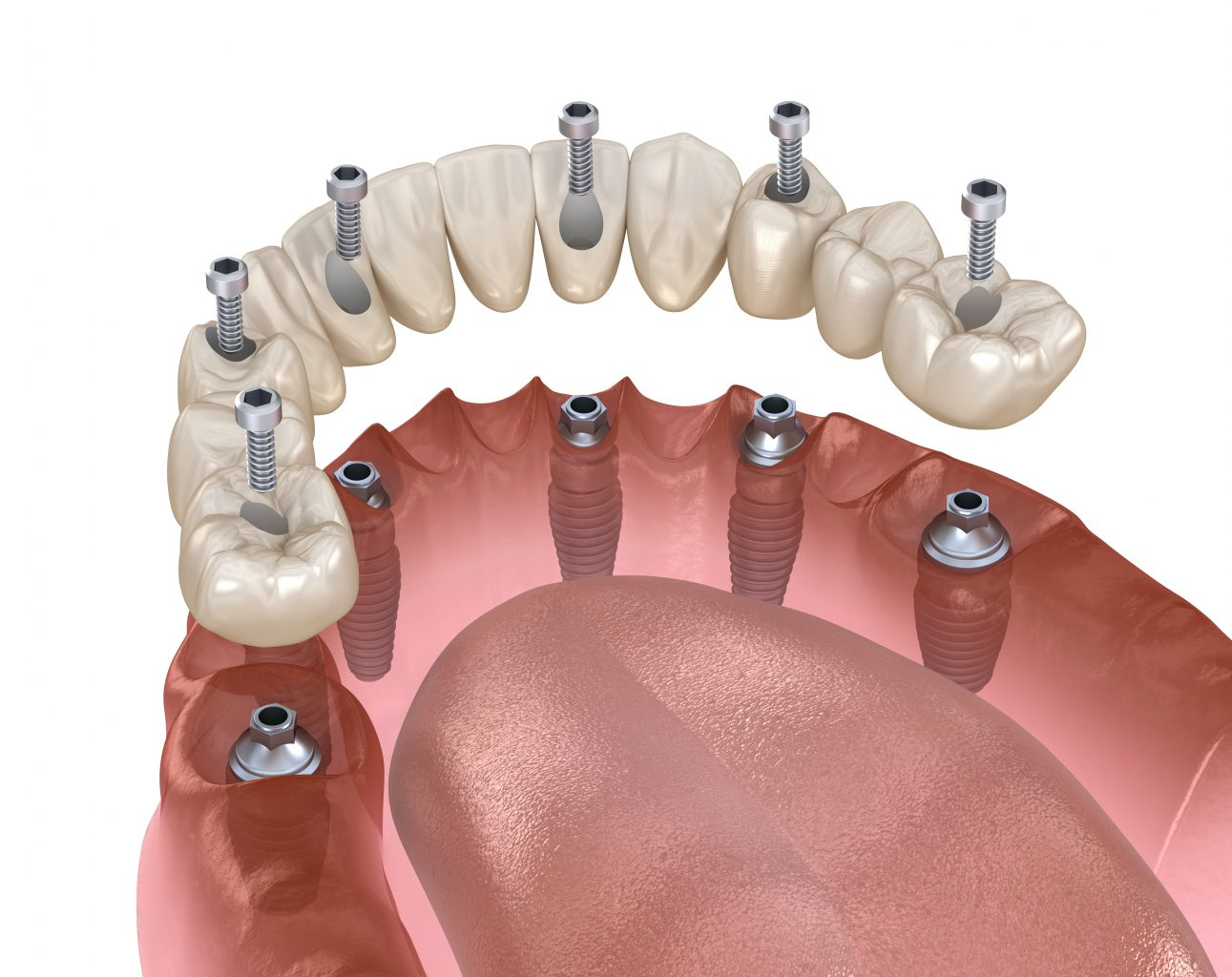 mandibular prosthesis all on 4 system supported by implants, screw fixation. medically accurate 3d illustration of dental concept