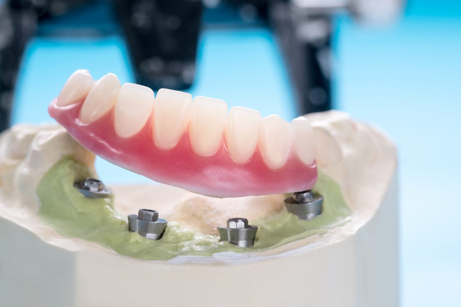 dental implants supported overdenture.
