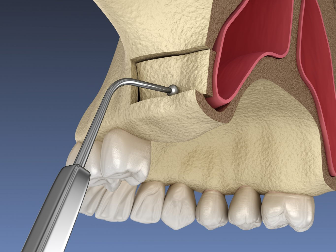 sinus lift surgery creating side access to the sinus. 3d illustration